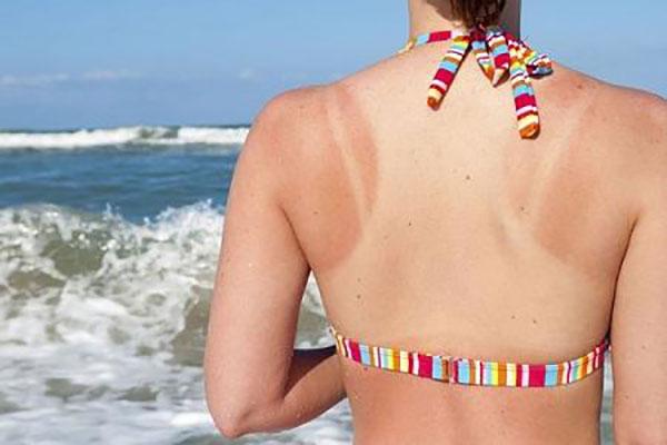 4 vấn đề về da thường gặp trong mùa hè - Ảnh 1