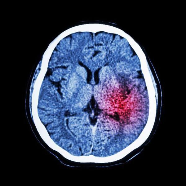 Chứng phình động mạch này là nguyên nhân dẫn đến xuất huyết dưới nhện, gây ra đột quỵ.