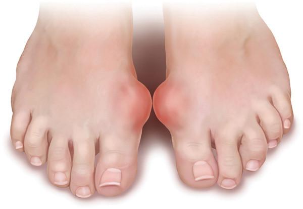 Biến chứng mà gout thường gây ra là các bệnh về tim mạch