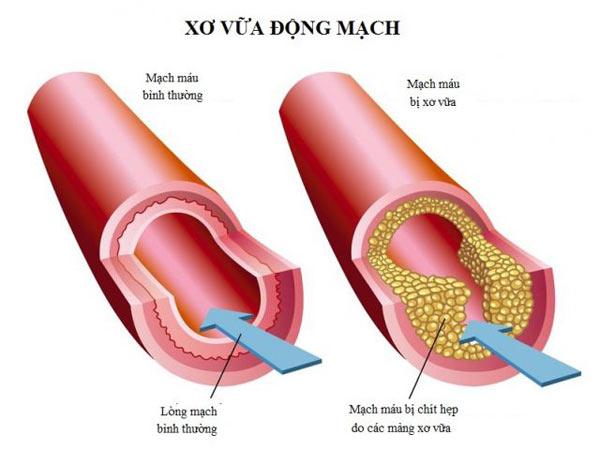 Bệnh xơ vữa động mạch là từng mảng xơ vữa tích tụ bên trong thành động mạch, gây tắc nghẽn quá trình lưu thông máu