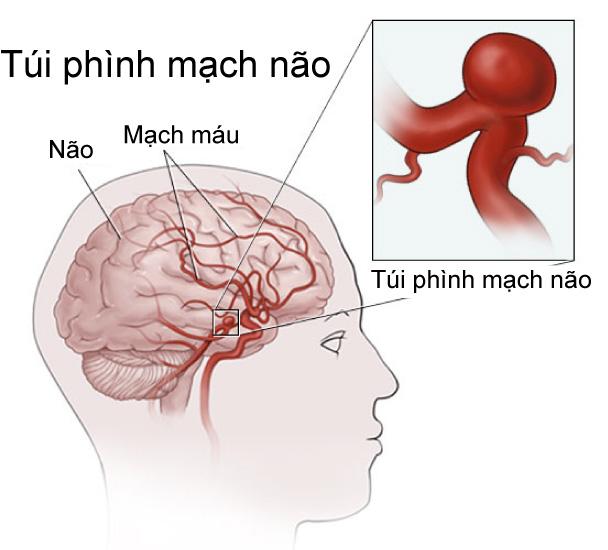 Phình động mạch não là tình trạng khi máu lưu thông, một điểm trên mạch máu sẽ phình ra như một quả bóng nhỏ