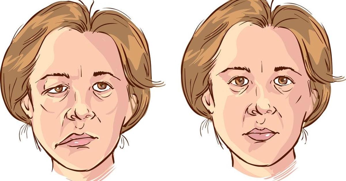 Chứng phình động mạch não cũng là nguyên nhân khiến mặt bị ngứa ran và dần tê liệt