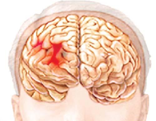 Bé 2 tháng tuổi bị chấn thương sọ não vì điện thoại rơi trúng - Ảnh 1