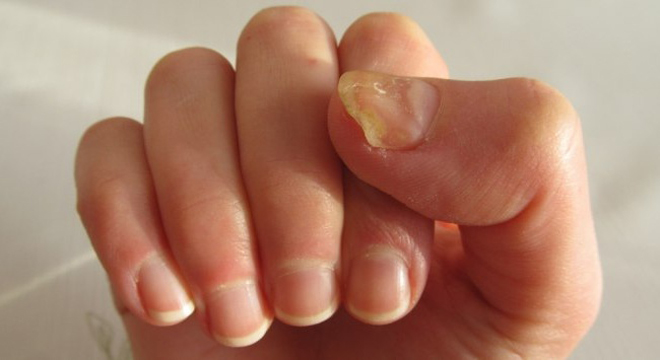 Móng tay tiết lộ tình trạng sức khỏe của bạn - Ảnh 3