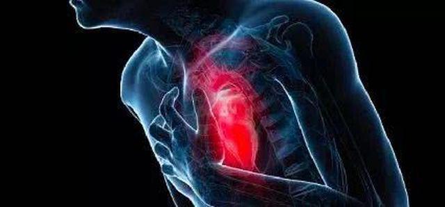 Người phụ nữ qua đời vì nhồi máu cơ tim, bác sĩ khuyên cảnh giác với món ăn thường ngày - Ảnh 4