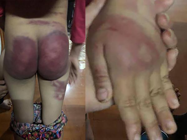 Bé gái 8 tuổi bị bạo hành ở Thanh Hóa: Bố trói hai tay vào cột nhà và dùng roi tre đánh rất mạnh - Ảnh 1