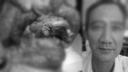 Bệnh viện Ung bướu TP.HCM tái tạo lưỡi cho bệnh nhân ung thư nói trở lại - Ảnh 2
