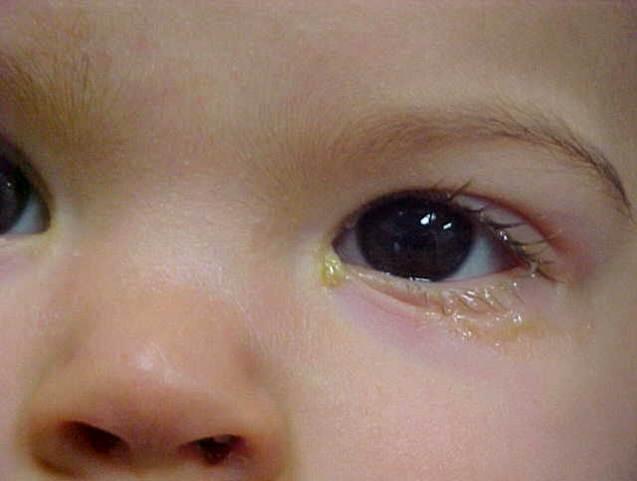 Xử trí khi trẻ sơ sinh bị tắc tuyến lệ, tránh nguy cơ nhiễm trùng - Ảnh 2