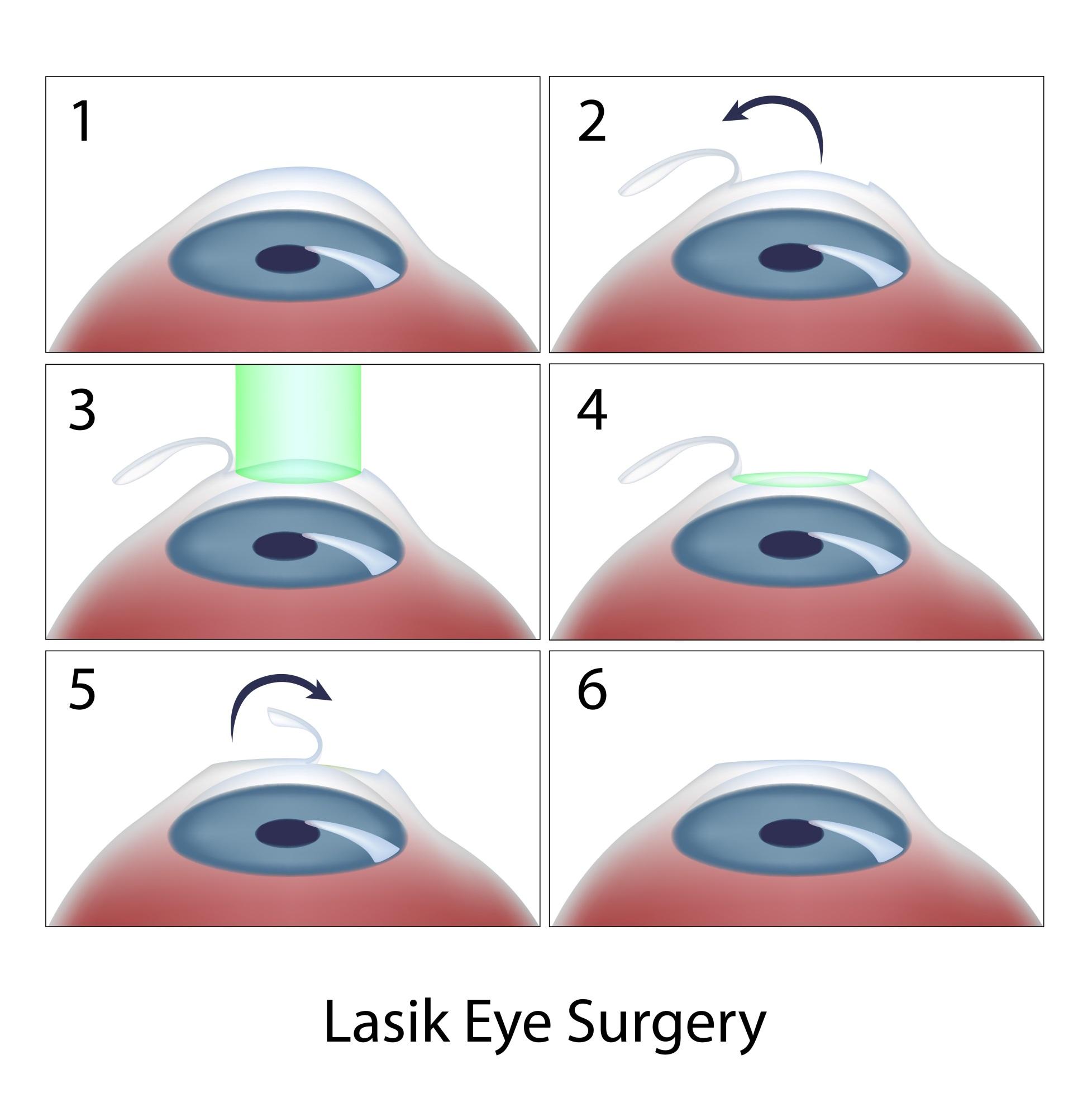 Nếu có ý định phẫu thuật mắt bằng laser, bạn cần biết những thông tin này - Ảnh 2