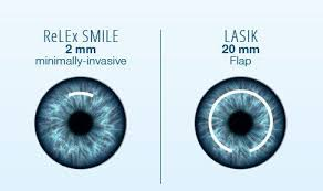 Nếu có ý định phẫu thuật mắt bằng laser, bạn cần biết những thông tin này - Ảnh 3