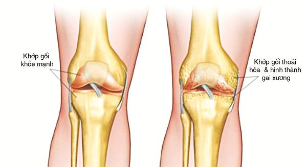 Thoái hóa xương khớp là tình trạng tổn thương sụn, xương dưới sụn làm suy giảm chất lượng dịch khớp gây ra viêm, sưng tấy