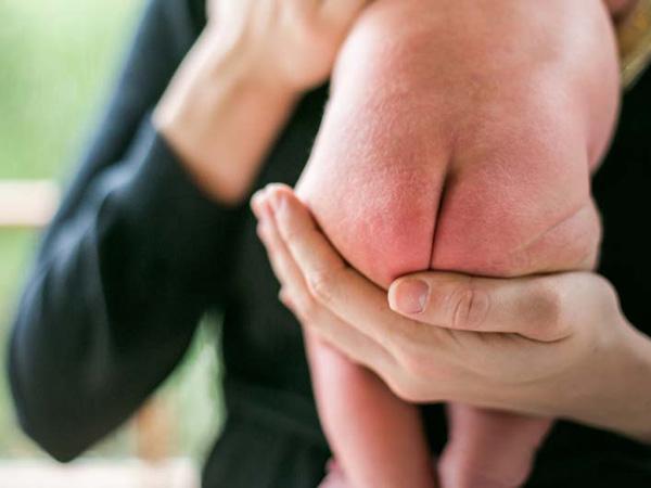 Phòng ngừa hăm tã cho trẻ sơ sinh, chuyên gia gợi ý cách đơn giản cha mẹ nên thuộc nằm lòng - Ảnh 1