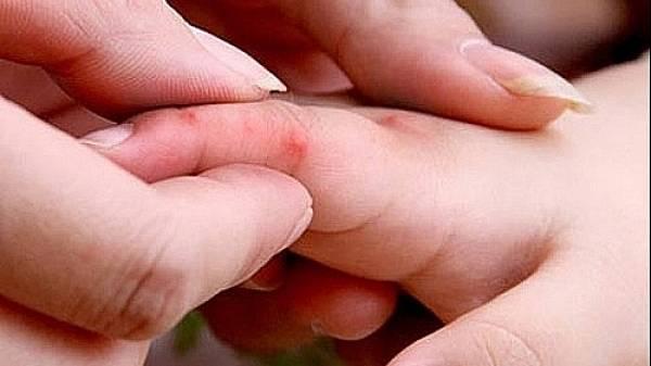 Cảnh báo: 9 loại bệnh truyền nhiễm nguy hiểm cần phải giám sát cách ly theo hướng dẫn của Bộ Y Tế - Ảnh 2