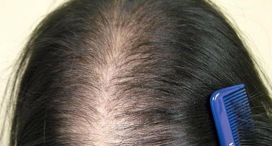 Thay đổi kiểu tóc, áp lực trong cuộc sống cũng như các tác nhân khác dẫn đến tình trạng tóc thưa dần và hói