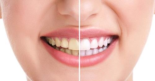 Răng trắng bóng chỉ sau 3 lần sử dụng vỏ chanh - Ảnh 1