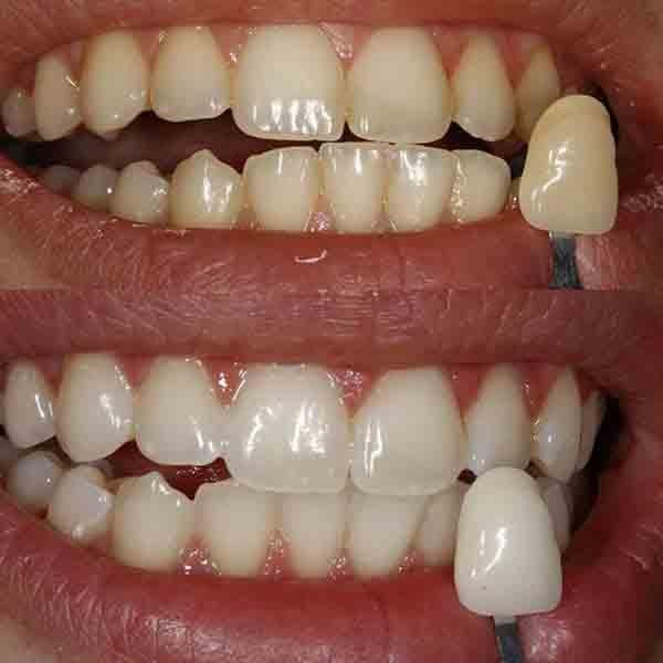 Pha giấm ăn và muối để súc miệng theo cách này, cao răng cứng như vôi cũng sạch bong tức thì chỉ sau 3 phút - Ảnh 4