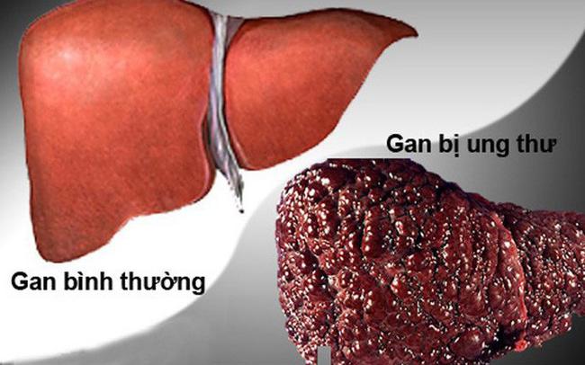Bác sĩ cảnh báo 3 bộ phận trên cơ thể dễ bị ung thư nhất, người Việt không nên chủ quan - Ảnh 1