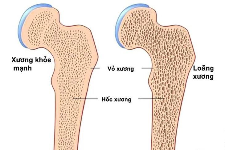 Cứng ngón tay, dấu hiệu tưởng chừng đơn giản nhưng rất có thể là triệu chứng của 4 căn bệnh này, đừng nên xem thường - Ảnh 2