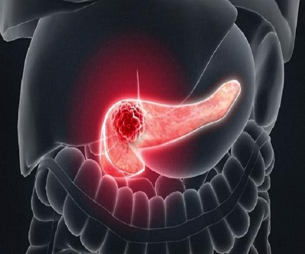 Người đàn ông có sức khỏe tốt, sau cơn đau bụng được bác sĩ chẩn đoán là ung thư tụy giai đoạn cuối, qua đời sau 6 tháng - Ảnh 1