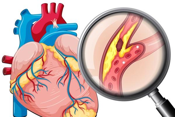 Có 3 đặc điểm này ở vùng đầu, rất có thể là dấu hiệu của nhồi máu cơ tim, mọi người nhất định phải biết - Ảnh 3