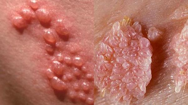 Đôi vợ chồng trẻ cùng nhập viện vì lây nhiễm chéo virus HPV, do cả 2 có thói quen này khi tắm. - Ảnh 2