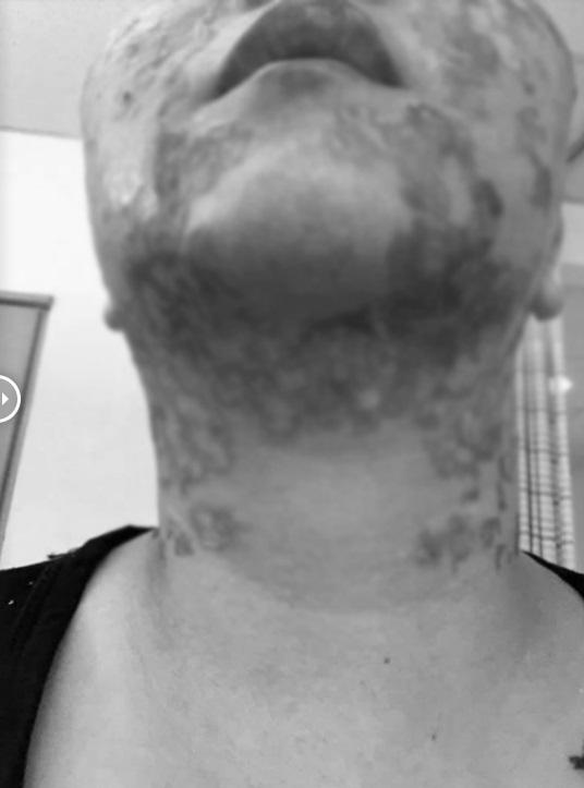 RÙNG MÌNH: Mặt rộp như bánh đa sau khi căng da bằng phương pháp Hifu - Ảnh 4