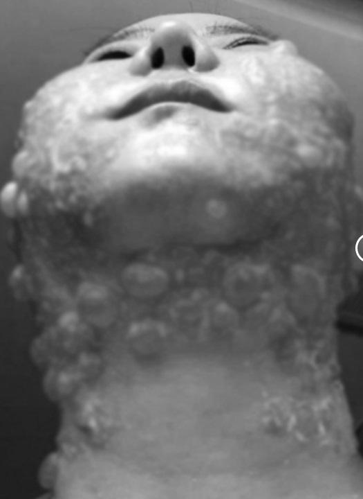RÙNG MÌNH: Mặt rộp như bánh đa sau khi căng da bằng phương pháp Hifu - Ảnh 3