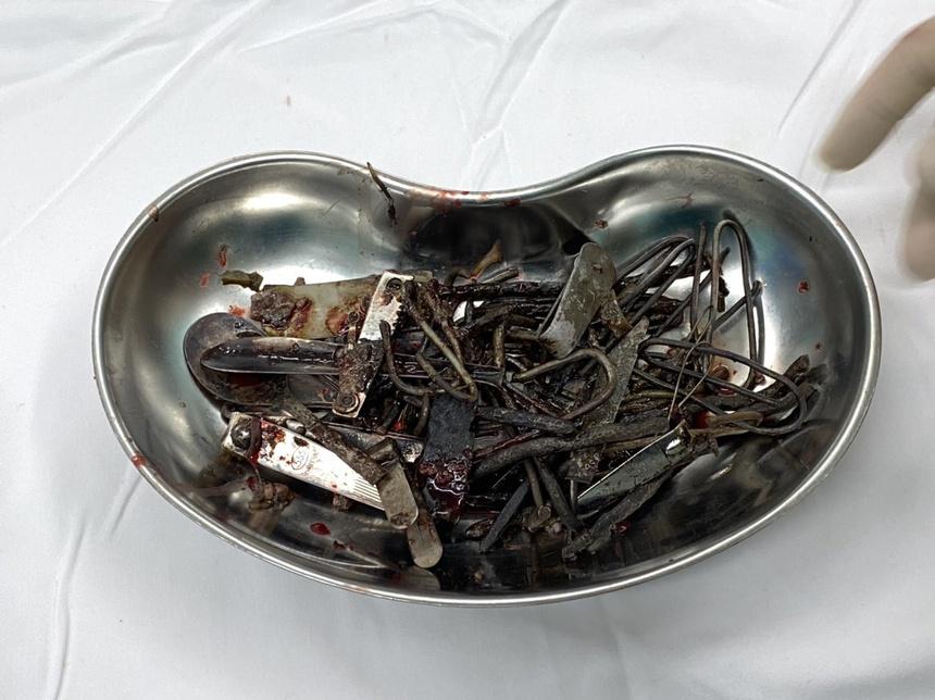 Ăn kim loại, loét da toàn thân và những căn bệnh lạ ở Việt Nam - Ảnh 1