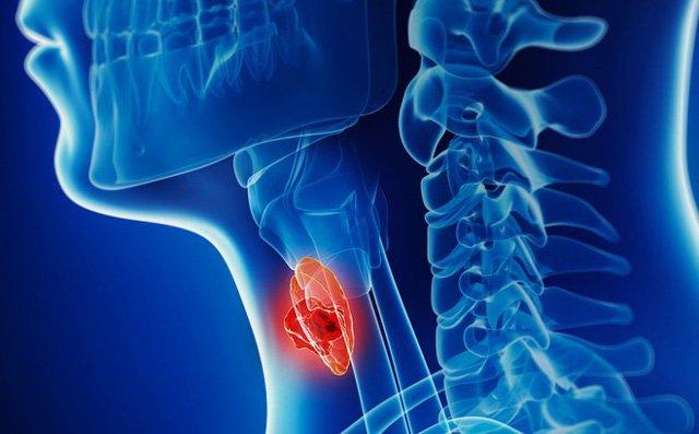 Sốc: Nghệ sĩ Giang còi mắc ung thư hạ họng đã di căn vì dấu hiệu bệnh rất khó phát hiện và dễ nhầm lẫn - Ảnh 2