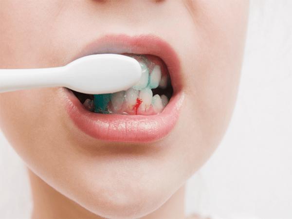 3 dấu hiệu bất thường ở răng miệng có thể giúp bạn phát hiện ra những căn bệnh nguy hiểm ở gan - Ảnh 1