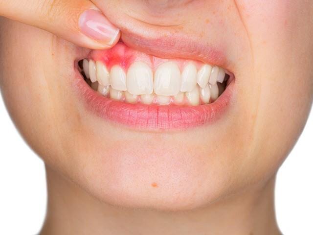 3 dấu hiệu bất thường ở răng miệng có thể giúp bạn phát hiện ra những căn bệnh nguy hiểm ở gan - Ảnh 2