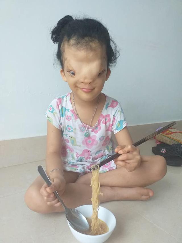 Mẹ của cô bé có khuôn mặt biến dạng ở Quảng Bình gửi con để đi giúp người dân chống lũ - Ảnh 2