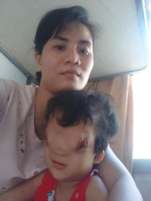 Mẹ của cô bé có khuôn mặt biến dạng ở Quảng Bình gửi con để đi giúp người dân chống lũ - Ảnh 4