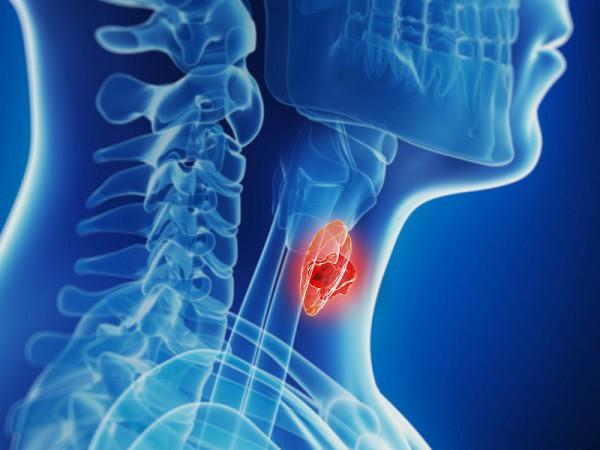 Triệu chứng điển hình của bệnh ung thư tuyến giáp, không muốn bệnh di căn hãy đến bệnh viện kiểm tra ngay - Ảnh 1