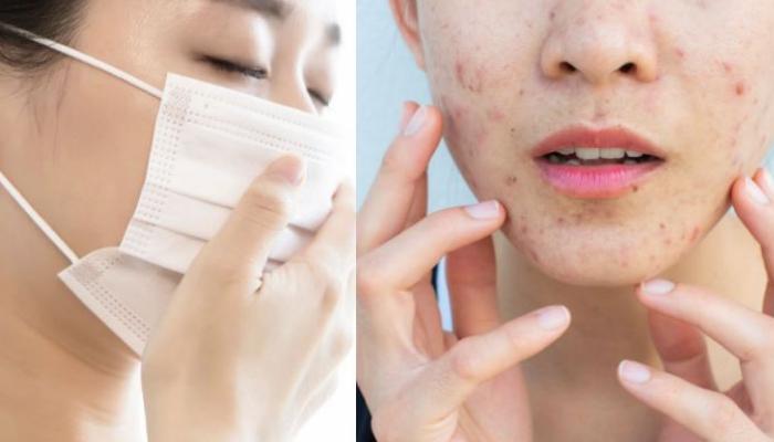 3 thứ cần giữ sạch nếu muốn da mặt không bị tổn thương khi phải đeo khẩu trang thường xuyên trong mùa dịch covid-19 - Ảnh 1