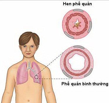 Người bị hen phế quản thường có sức khỏe yếu, hô hấp không tốt nên không cung cấp đủ oxy cho các hoạt động trong cơ thể