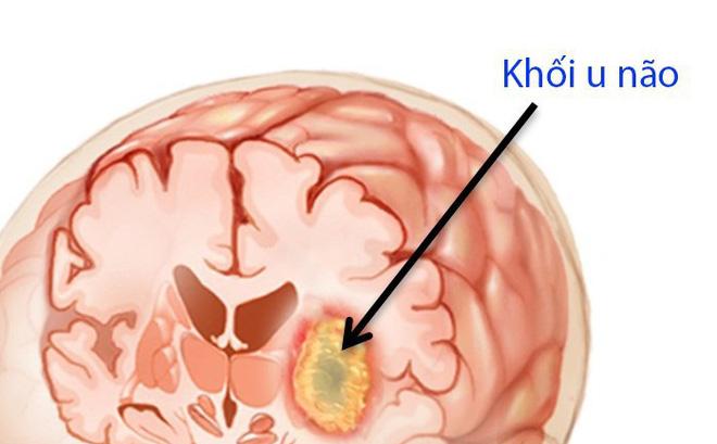 Khối u não ở bé gái 9 tuổi, bác sĩ chỉ ra những dấu hiệu bất thường cha mẹ không thể bỏ qua - Ảnh 2