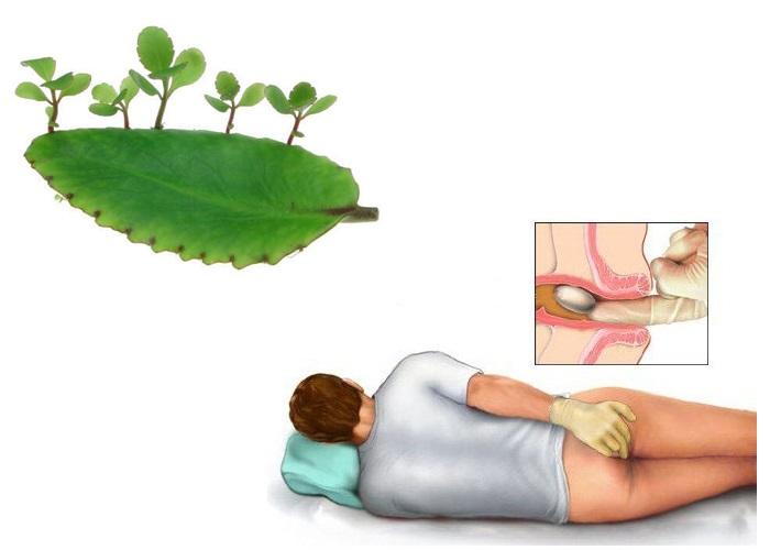 Cách trị bệnh trĩ bằng phương pháp dân gian từ cây lá bỏng