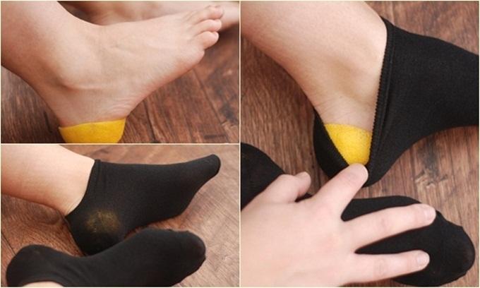 5 cách trị gót chân nứt nẻ cực đơn giản - Ảnh 1