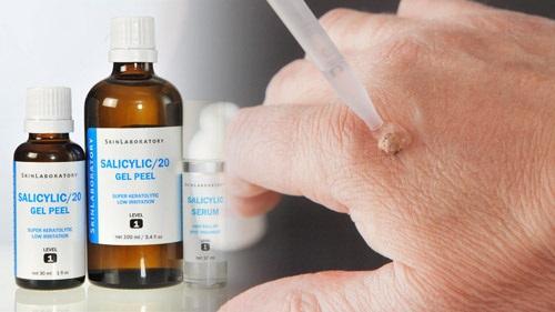 Trị mụn cóc bằng axit salicylic là cách ít tốn kém và hiệu quả nhất