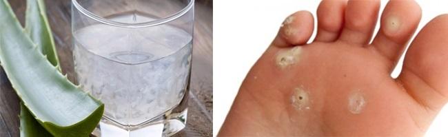 Uống nước nha đam cũng giúp trị mụn cóc nhanh hơn