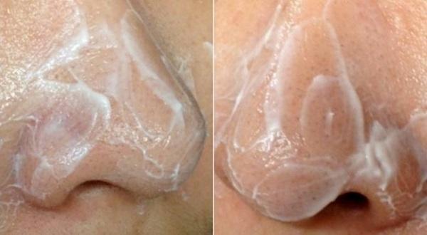 Sẵn có Vaseline lấy thoa lên da, mụn đầu đen chi chít cũng tự động chui ra bằng hết mà không cần nặn, không đau rát - Ảnh 3