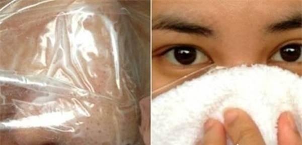 Sẵn có Vaseline lấy thoa lên da, mụn đầu đen chi chít cũng tự động chui ra bằng hết mà không cần nặn, không đau rát - Ảnh 4