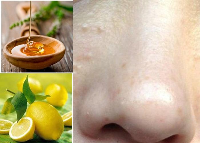 Trị mụn thịt bằng mật ong và nước cốt chanh