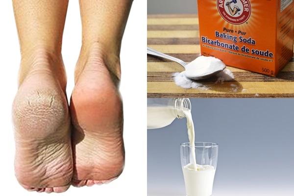 Dùng sữa tươi và baking soda giúp trị nứt gót chân hiệu nghiệm