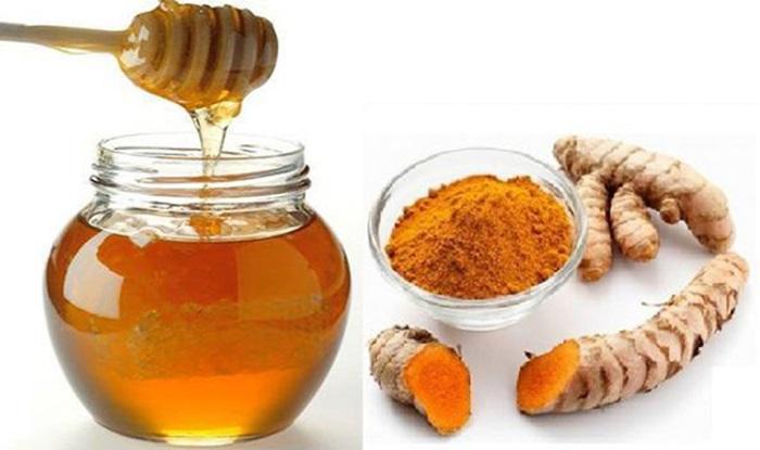 Cách trị sẹo lồi bằng nghệ tươi và mật ong