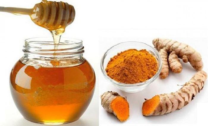 Nghệ và mật ong là 2 nguyên liệu có khả năng trị sẹo lồi nhanh nhất.