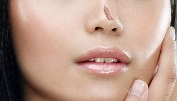 Sẹo lồi ở mũi khiến ban thiếu tự tin khi giao tiếp