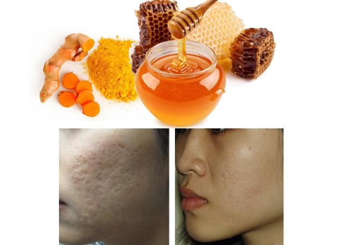 Trị sẹo lõm bằng mật ong kết hợp với tinh bột nghệ phục hồi nhanh chóng các tế bào hư tổn.