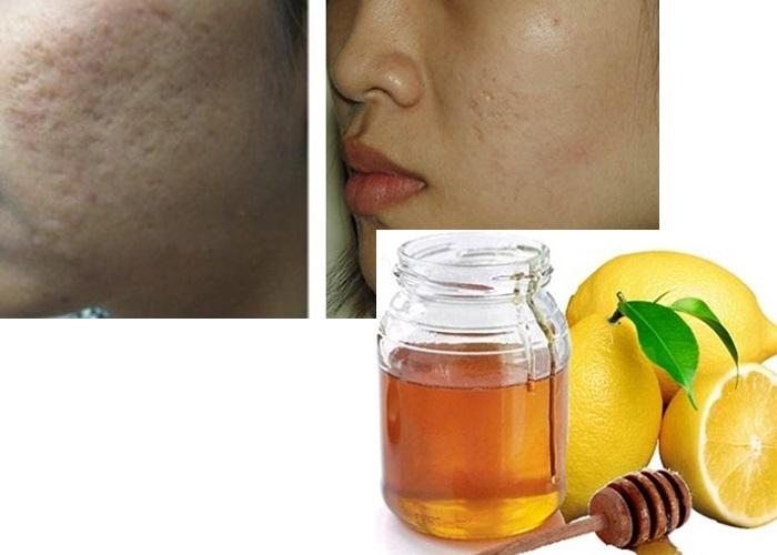Cách trị sẹo lõm bằng mật ong kết hợp với chanh thúc đẩy quá trình điều trị đạt được kết quả cải thiện tốt nhất